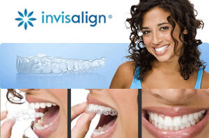 The Invisalign system is a series of clear aligners used to straighten teeth