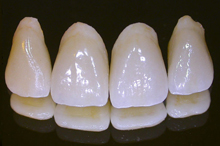 Porcelain dental crowns are artificial teeth that are carefully shaped and colored to match your natural teeth