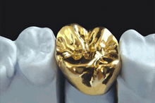 The preparation of a tooth for a gold crown is the simplest and least complicated preparation