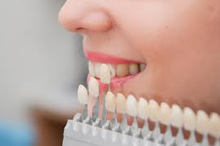 Dental veneers are wafer-thin, custom-made shells of tooth-colored material designed to cover the front surface of teeth
