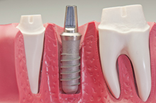Dental implants are surgically implanted in the jaw to provide a comfortable, secure fit and a natural look